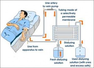 Treatment Kidney Failure